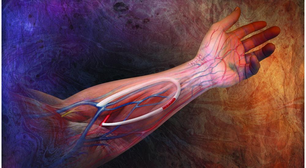 4.人工血管